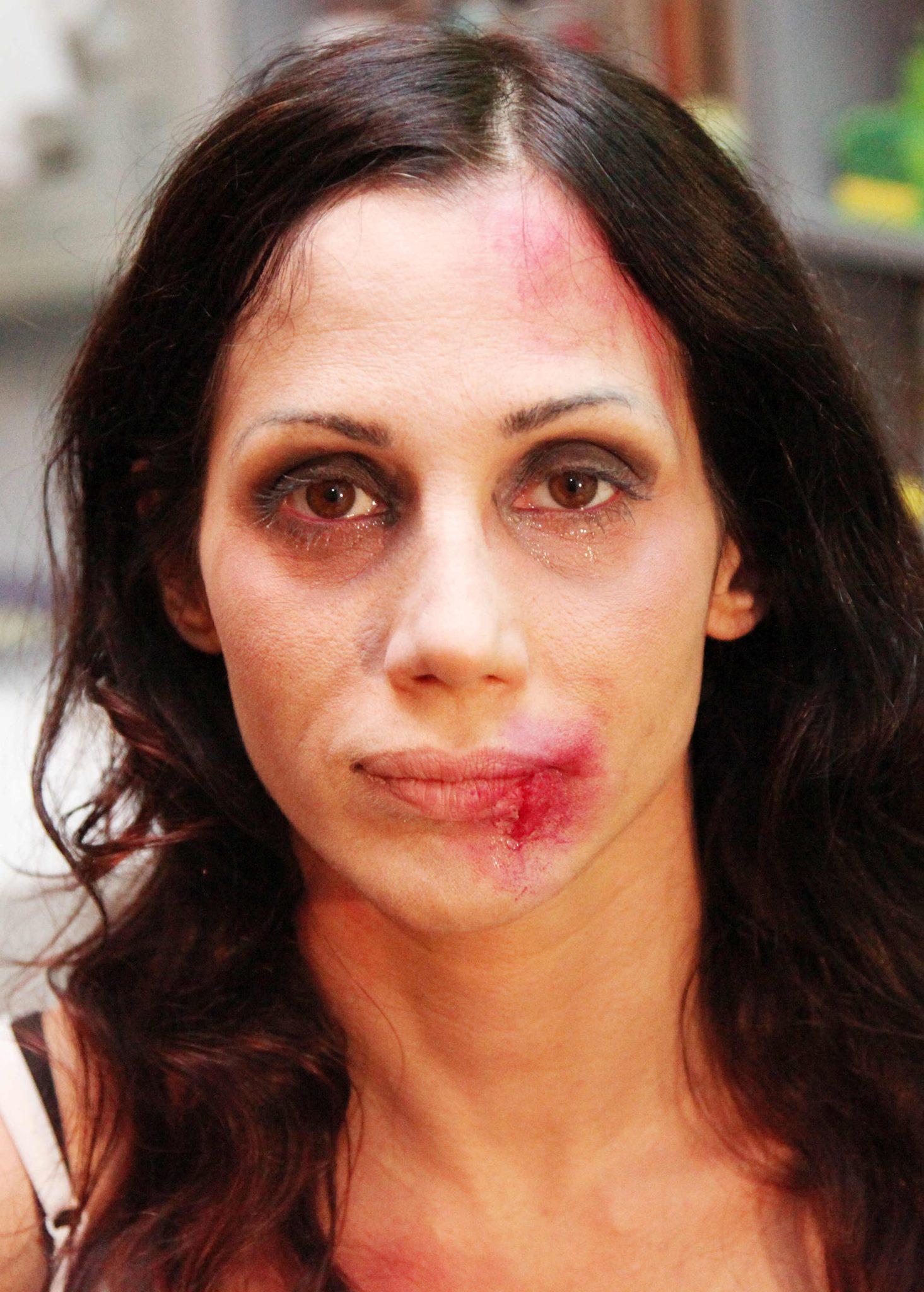 elisabetta-rocchetti-vittima-di-violenza